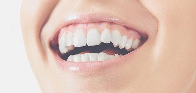 examinar tu boca una vez al mes