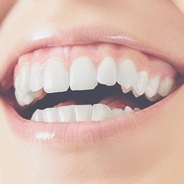 Peeling de encías - tratamiento estética dental