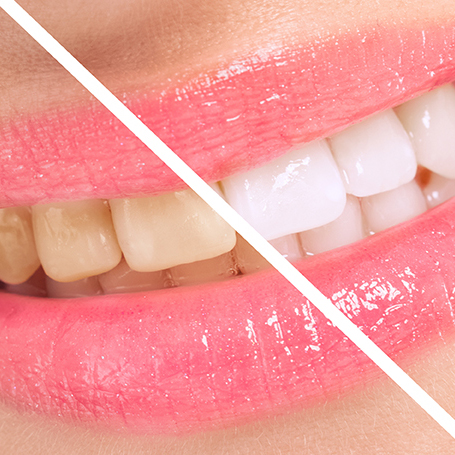 Blanqueamiento dental - Tratamiento de estética dental