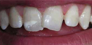 caso real de la fractura de un diente