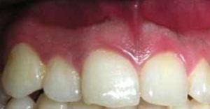 Imagen de un caso real de peeling de encías después del tratamiento.