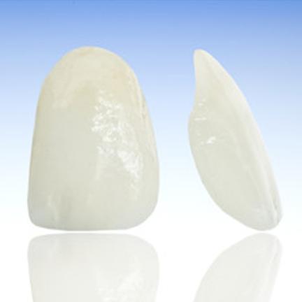 Carillas de porcelana - Tratamiento estética dental
