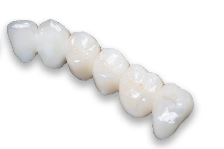 Puentes: prótesis dentales sin metal - Dr Ferre