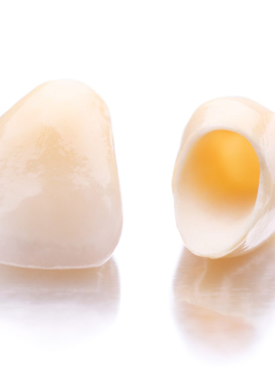 Coronas: prótesis dental sin metal - Dr Ferre