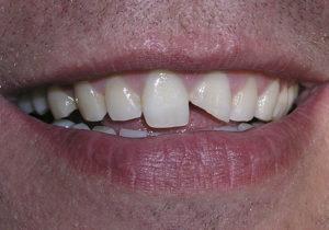 caso real de la fractura de una pieza dental