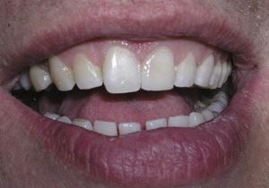 Resultado del tratamiento de una fractura dental