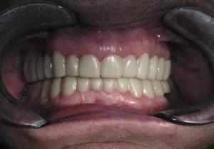 Tratamiento de un caso real de Snap on Smile