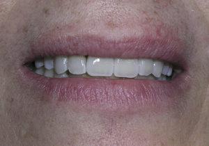Resultados de un caso real de pérdida de varios dientes