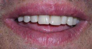 Caso real de carga inmediata en ausencia de dientes después del tratamiento