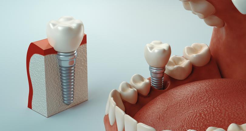 rechazo de un implante dental